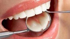 نکات طلایی برای مراقبت از دندان ها