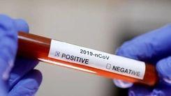 علائم جدید کروناویروس را بدانید!