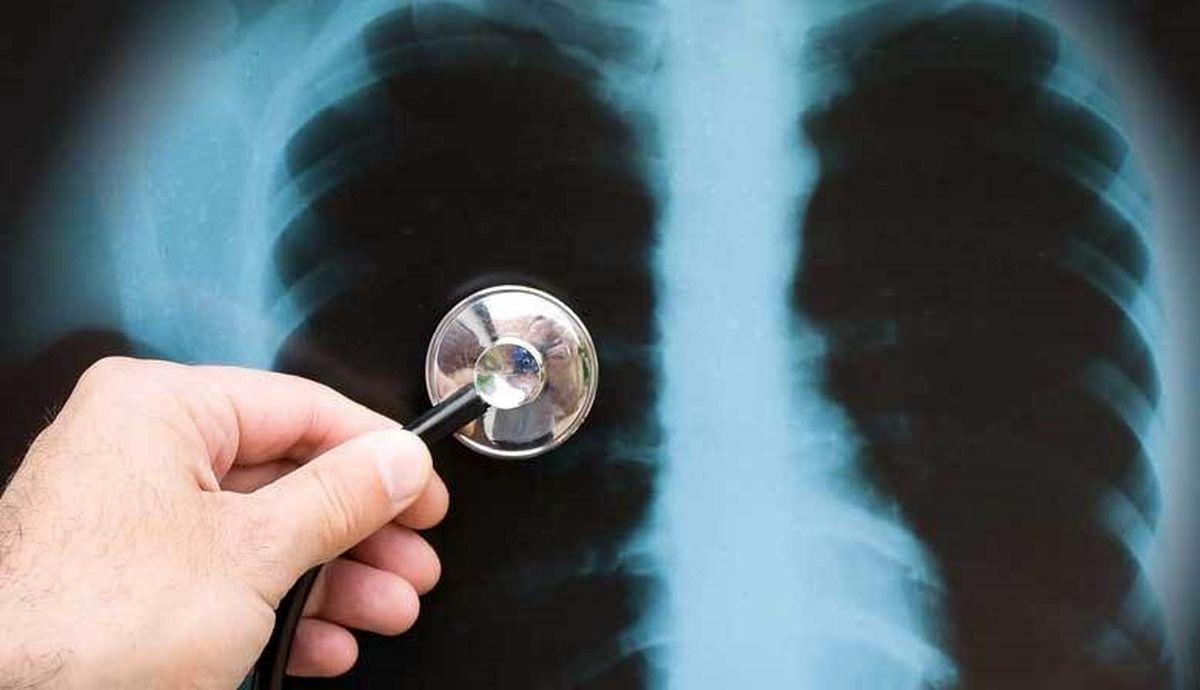 برای سلامت ریهها چه کنیم؟